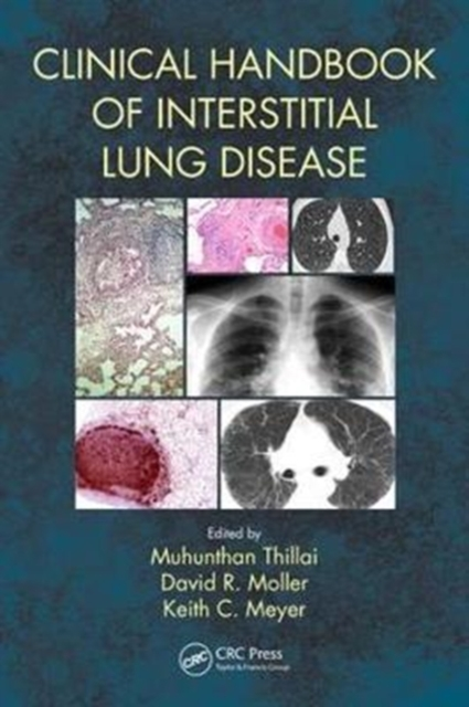 Clinical Handbook of Interstitial Lung Disease by Muhunthan Thillai, David R. Moller, Keith C. Meyer, ISBN: 9781498768252