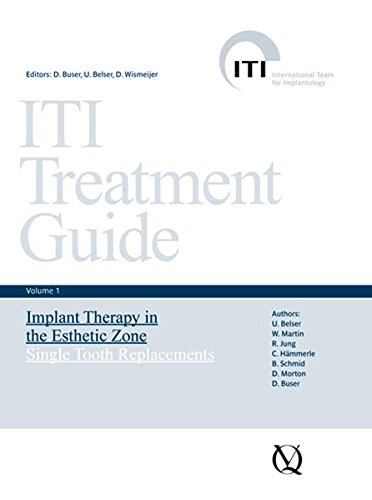 ITI Treatment Guide: Implant Therapy in the Esthetic Zone - Single-tooth Replacements v. 1