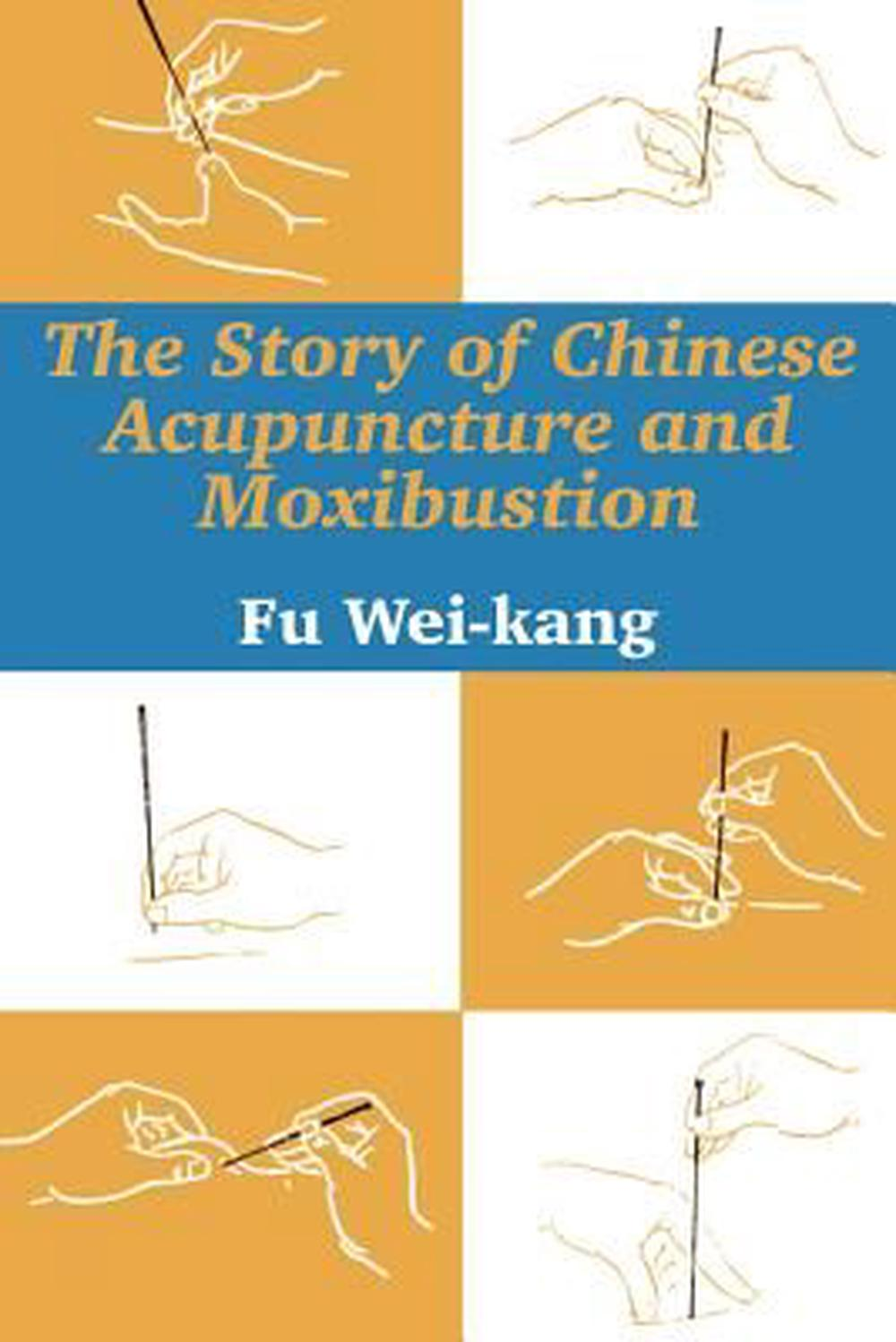 The Story of Chinese Acupuncture and Moxibustion