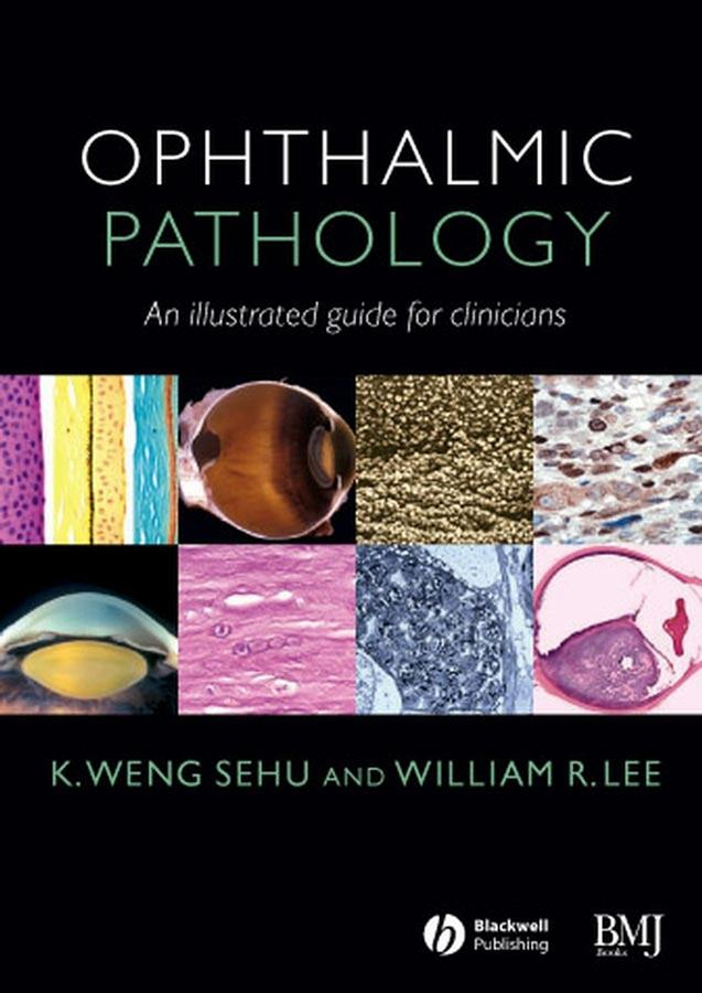 Ophthalmic Pathology