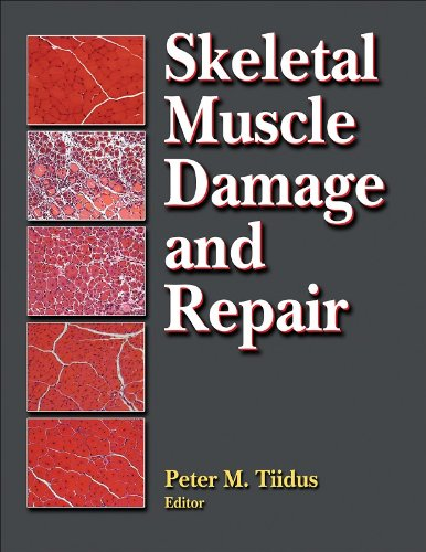 booko: comparing prices for skeletal muscle damage and repair, Muscles