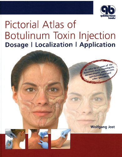 Pictorial Atlas of Botulinum Toxin Injection: Dosage, Localization, Application by Wolfgang Jost, ISBN: 9781850972204