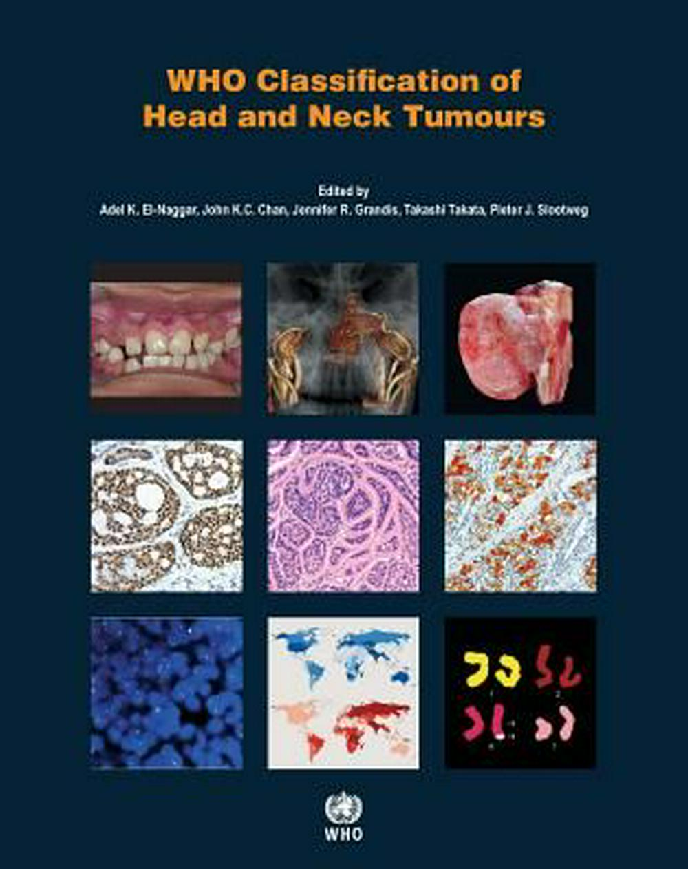 Who Classification of Head and Neck TumoursIARC Who Classification of Tumours