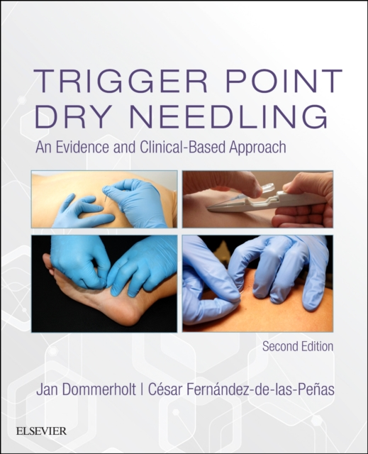 Trigger Point Dry Needling: An Evidence and Clinical-Based Approach, 2e