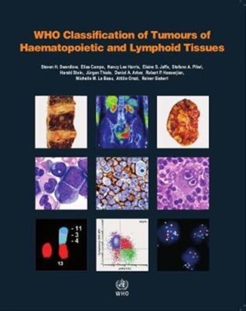 Who Classification of Tumours of Haematopoietic and Lymphoid Tissues (IARC Who Classification of Tumours) by S Swerdlow, ISBN: 9789283244943