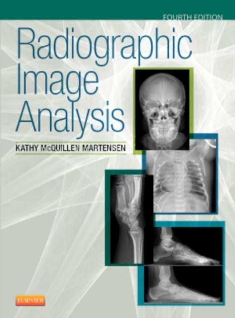 Radiographic Image Analysis, 4e by Kathy McQuillen Martensen MA  RT(R), ISBN: 9780323280525