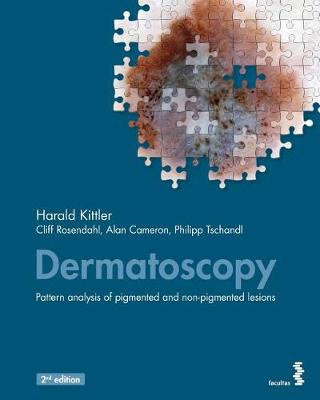 Dermatoscopy: An algorithmic method based on pattern analysis